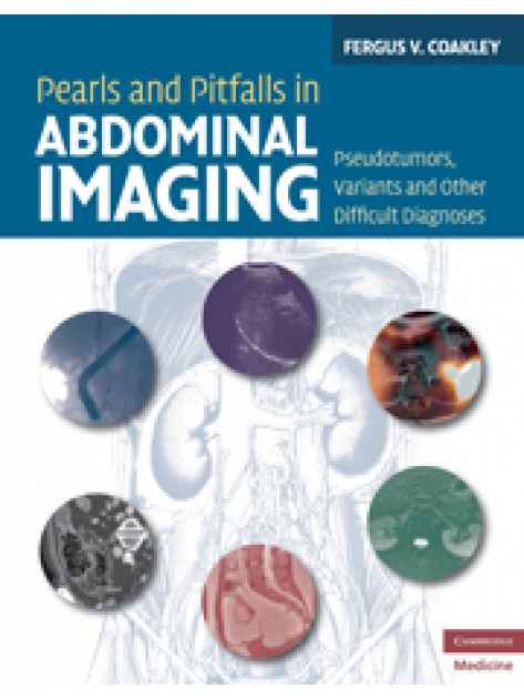 Pearls And Pitfalls In Abdominal Imaging border=
