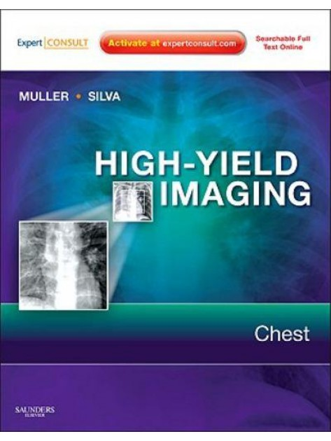 High-Yield Imaging: Chest